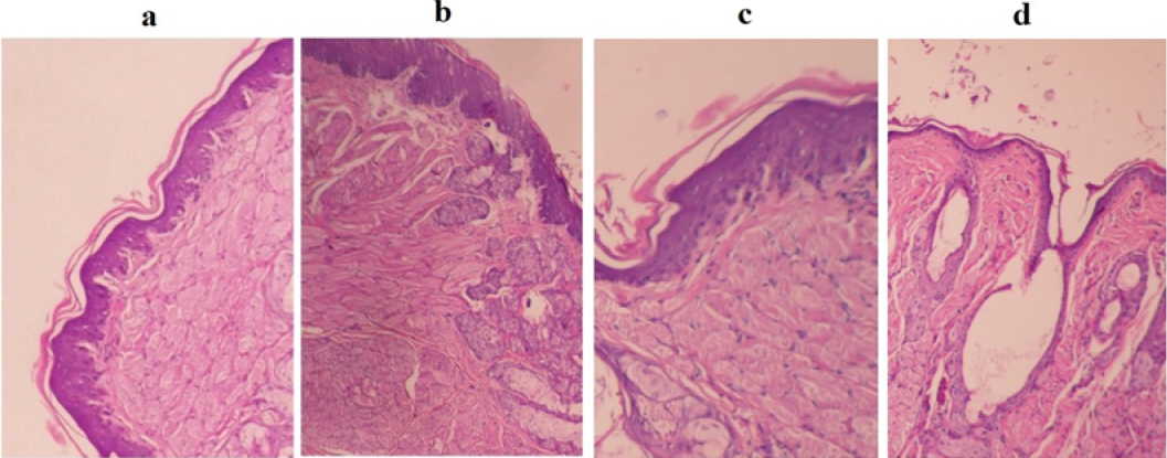 Figure 5: Histological appearance of chemotherapy-induced oral mucositis in rats on day 12 (a) negative control, (b) group 2 received freshly prepared EPO-loaded hydrogel, (c) group 3 received freeze-dried EPO-containing formulation, and (d) normal control. All evaluations were performed on hematoxylin and eosin routine staining (× 400).