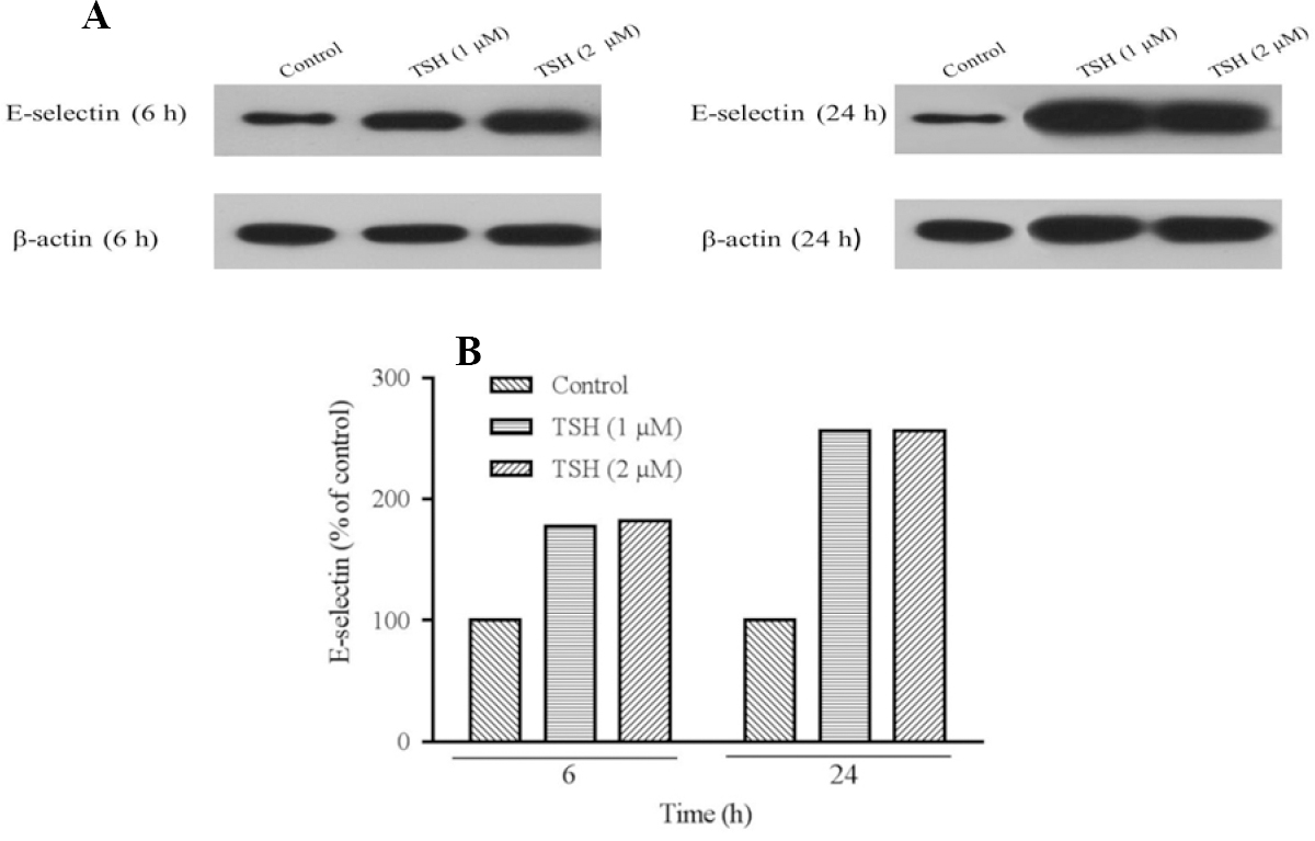 Figure 7: Prortein detection for evaluation of E-selectin expression performed using western blotting technique. (A) Protein expression levels of E-selectin in HUVECs cells treated by thyroid-stimulating hormone (TSH) (1 and 2 μM) for 6 and 24 hand (B) TSH treatment significantly increased relative expression of E-selectin. For analysis protein's bands densities, Image J software was used to analyze the densities. Each protein (in one repeat) bands normalized to β-actin bands.