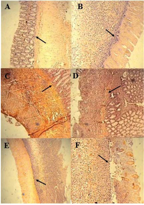 Figure 2: Microscopic presentation of colon in TNBS-induced colitis in rats (hematoxylin and eosin staining; original magnification 10×). (A) Normal group, mucus layer and crypts are normal; (B) TNBS-control group, epithelial distortion, crypt damage, and inflammatory cell infiltrates; (C and D) dexamethasone and alosetron groups respectively, moderate mucosal and submucosal inflammation and mucosal inflammatory cell infiltrates; and (E and F), mCPBG and mCPBG + alosetrone, respectively, infiltration of neutrophils and destruction of mucosal architecture. TNBS, 2, 4, 6-trinitrobenzenesulfonic acid; mCPG, meta-chlorophenylbiguanide.